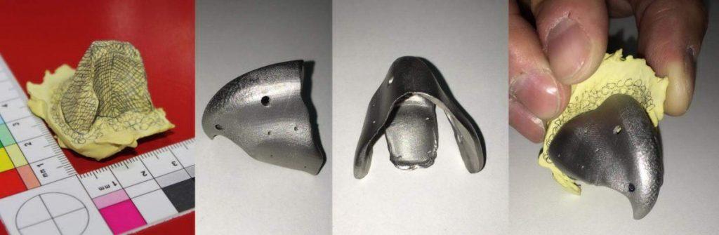 Ein Bauteil, welches Leben rettet: 3D-Druck-Schnabel aus Titan (Quelle: © Concept Laser GmbH)