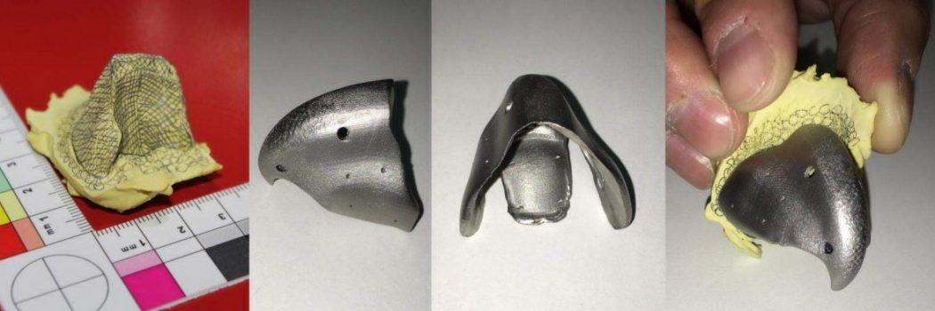 3D-Metalldruck im Dienste der Veterinärmedizin